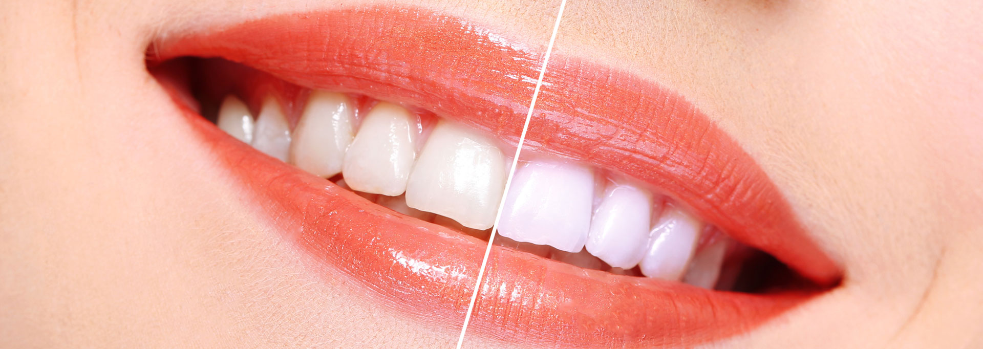 Essex Teeth Whitening