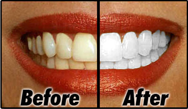 Teeth Whitening Buckhurst Hill